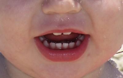 raga diente niño
