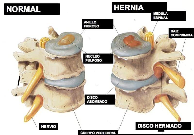 hernia-discal